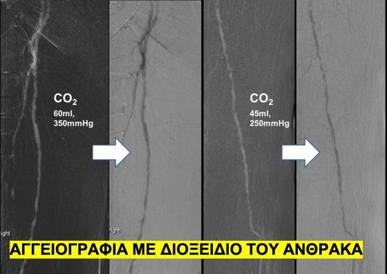 Αγγειογραφία με διοξείδιο του άνθρακα